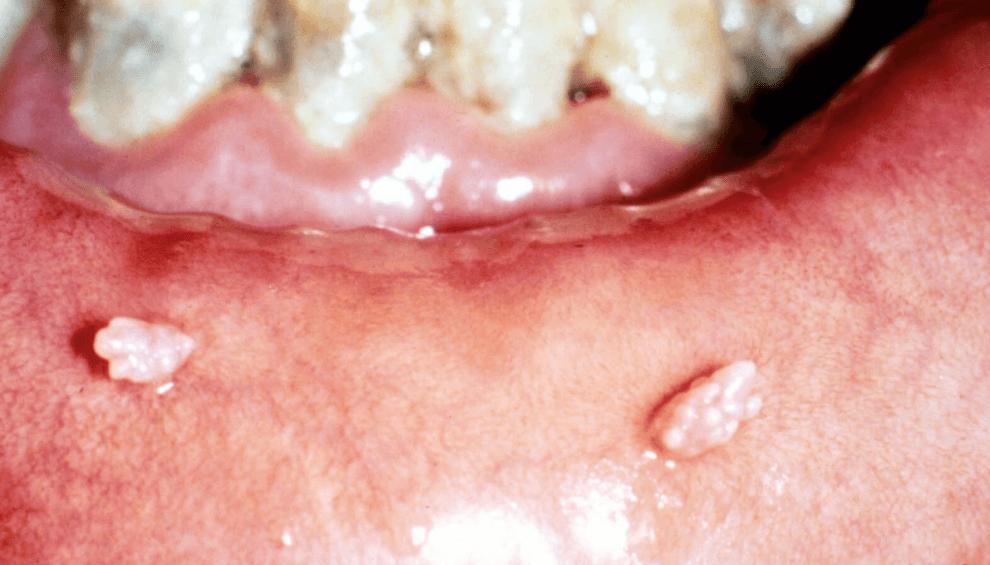 Como prevenir o HPV oral